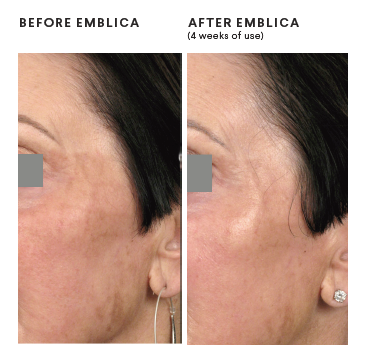 4 weeks of Emblica
